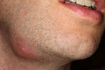 Абсцесс развивается при воспалении кожи на лице