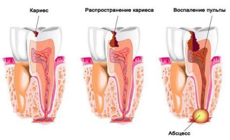 Воспаление десны и образование абсцесса