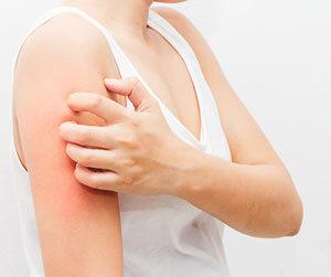 Причины зуда кожи тела с сыпью и без
