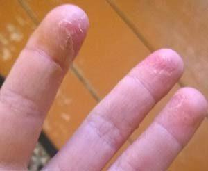 отчего облазит кожа на пальцах рук