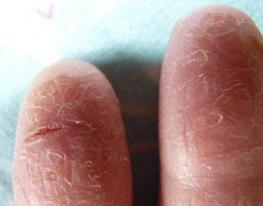 Почему слезает кожа на пальцах рук