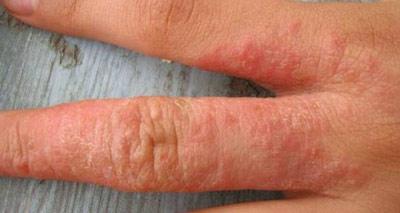 Раздражение кожи и как от него избавиться