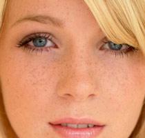 Почему на лице бывают пигментные пятна?