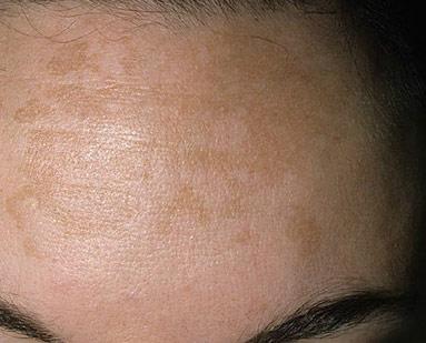 Отчего возникают коричневые и темные пигментные пятна и каким должно быть лечение
