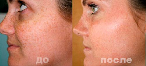 Как легко избавиться от пигментных пятен на лице