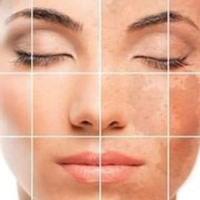 гиперпигментация кожи – избыточное образование в ней пигментных веществ и окрашивание в темный цвет