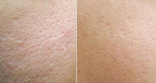 Какие методы эффективно использовать для очищения и сужения пор на лице и носу