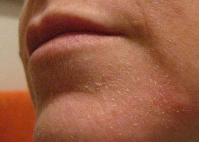 Почему кожа на лице краснеет и шелушится