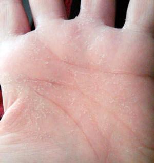 Что делать, если шелушатся руки