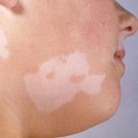 Почему на лице появляются белые пятна