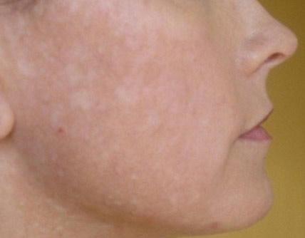 Отрубевидный лишай проявляется в виде мелких белых пятншек по коже
