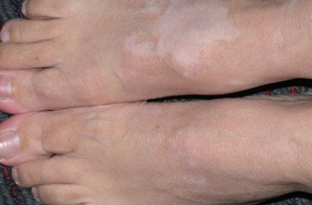 На ногах белые пятнышки, но это не ветилиго