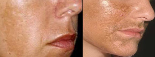Хлоазма – пигментные пятна на коже лица