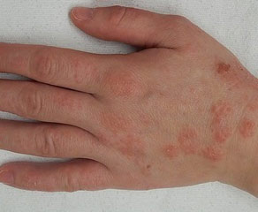 Аллергические красные пятна на коже рук