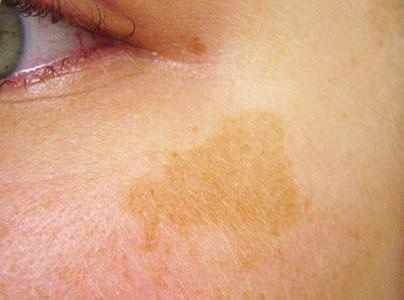 Что провоцирует появления желтых или желто-коричневых пятен на коже