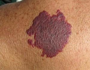 Причины винных и фиолетовых пятен на коже