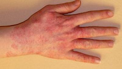 На кисти руки появилось красное пятно и чешется