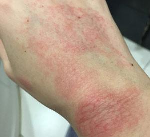 Высыпание красного цвета на руке из-за перепада температур