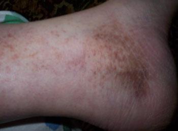 Причины темных пятен на коже