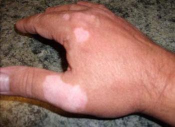 После загара появились белые пятна на руке