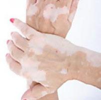 Аутоиммунное заболевание, при котором на коже рук появляются белые пятна.