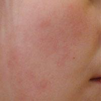 Почему на лице появляются красные пятна