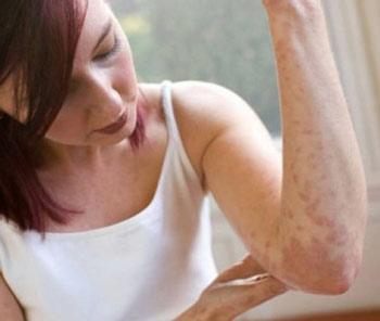 Красные пятна на теле в результате аллергической реакции
