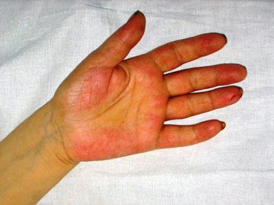 На фото пятна на руках от печени и пожелтение кожи