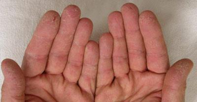 Почему трескается кожа на пальцах рук?