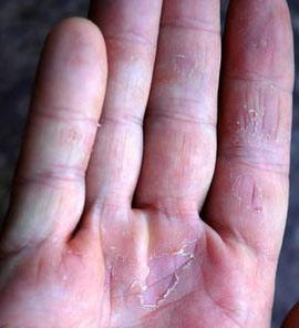 Внешние и внутренние причины трещин на руках и сухости кожи