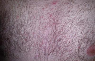 Высыпания аллергического характера на грудной клетке