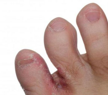 Кожное заболевание - грибок, поразивший пальцы ног