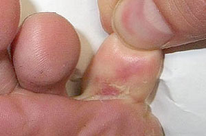 Зуд кожи под пальцем и покраснение, как результат заражения грибковыми инфекциями