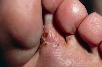 Как в домашних условиях вылечить грибок между пальцами ног