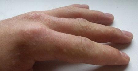 При каких болезнях появляются пузырьки под кожей на пальцах рук