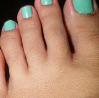 Причины зуда и шелушения между пальцами на ногах