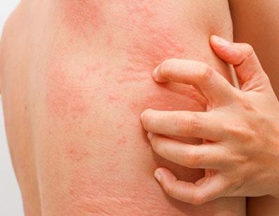 Почему появляются красные пятна и чешется тело на нервной почве