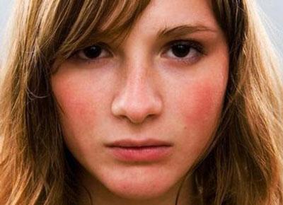 Причины покраснения и горения лица