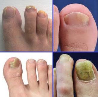 Причины дерматофитов ногтей на ногах