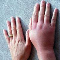При каких заболеваниях возникает отек и зуд кистей рук