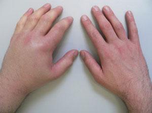 Почему отекла кисть руки и чешется