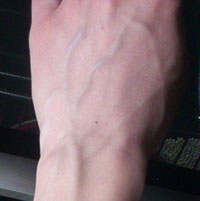 Почему стали видны вены по всему телу?