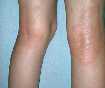 Нейродермит - причина появления зуда и покраснения под коленками