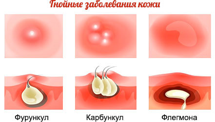 Какие бывают гнойные заболевания кожи