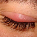 Чешутся и болят глаза после наращивания ресниц