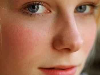 Почему краснеют щеки у подростка