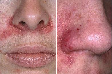 Сыпь и покраснение около носа