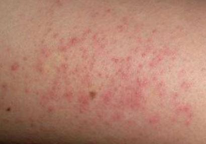 Мелкие красные прыщики на теле у взрослого при аллергии