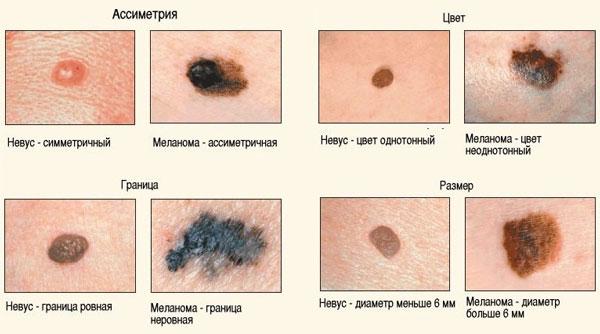 Причины появления родинок на теле и методы лечения опасных меланом