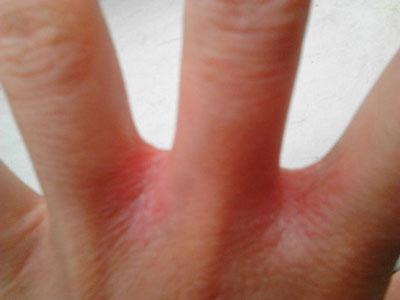 Раздражени и покраснение между пальцами рук